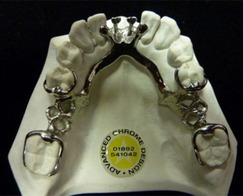 Advanced Chrome Design Dental Laboratory